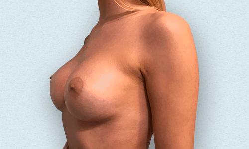 dopo l'intervento chirurgico al seno