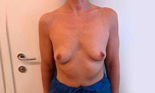 prima dell'aumento del seno.